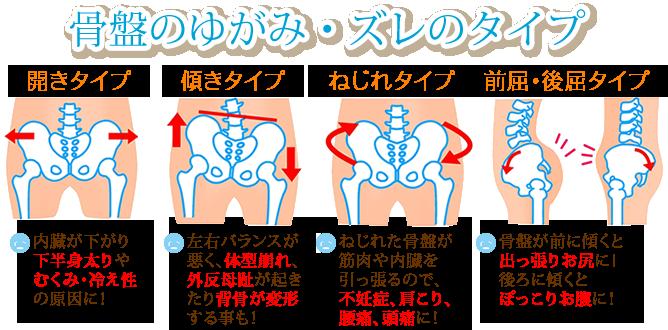 骨盤の歪みの種類